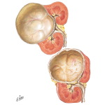 Solitary Cysts of the Kidney