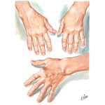 The Hands of Rheumatoid Arthritis