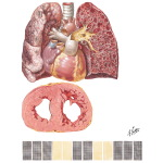 Chronic Cor Pulmonale