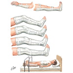 Splints to Rest Inflamed Joints and Correct Deformities