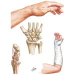 Fracture of the Scaphoid (Navicular)