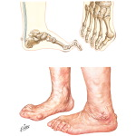 The Feet In Rheumatoid Arthritis