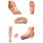 Lesions in Diabetic Foot