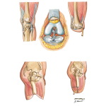 Disarticulation of Knee