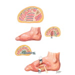 Deep Infections of Foot