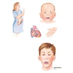Illustration of Fetal Alcohol Syndrome from the Netter Collection