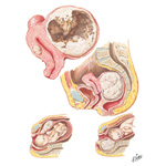 Myoma (Fibroid) III - Cystic Degeneration, Incarceration, Obstruction