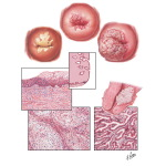 Cancer of Cervix II - Various Stages and Types