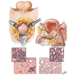 Carcinoma of Prostate III - Early, Estrogen and Castration Effects