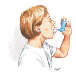 Pharmacologic Management in Asthma