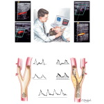 Noninvasive Evaluation of Carotid Arteries