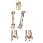 Fracture of Tibia in Children
