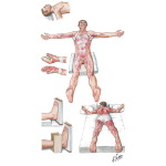 Illustration of Prevention of Contractures After Burn Injury from the Netter Collection