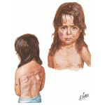 Fracture in Abused Children