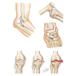 Types of Joint Injury