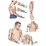 Prostheses for Upper Limb
