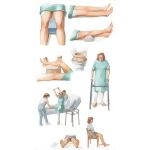 Illustration of Rehabilitation After Total Hip Replacement from the Netter Collection