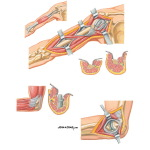 Surgical Approaches to the Arm