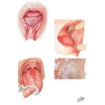 Common Oral Lesions