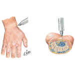 Aspiration of Wrist Joint