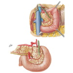 Arteries of Duodenum and Head of Pancreas