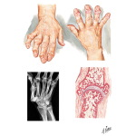 Hand Involvement In Osteoarthritis