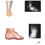 Disorders of the Foot and Ankle