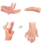 Physical Examination of the Hand