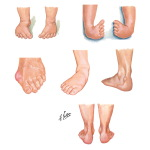 Physical Exam of the Foot and Ankle