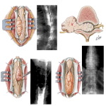 Intradural Spinal Tumors