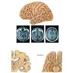 Gross Pathology in Alzheimer's Disease