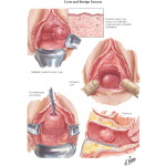 Cysts and Benign Tumors