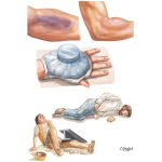 Closed Soft Tissue Injuries