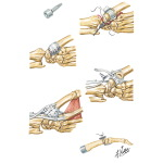 Trapezium Implant Resection Arthroplasty for Thumb Disabilities