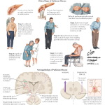 Illustration of Parkinsonism: Symptoms and Defect from the Netter Collection