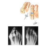 Flexible Implant Resection Arthroplasty for Disabilities of Great Toe