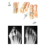 Swanson Flexible Implant Resection Arthroplasty for Great Toe