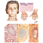 Progressive Systemic Sclerosis (Scleroderma) and Rheumatoid Arthritis