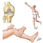 Rupture of Anterior Cruciate Ligament
