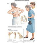 Clinical Manifestations of Osteoporosis