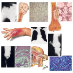 Tumors Metastatic to Bone