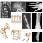 Bony Manifestations of Renal Osteodystrophy