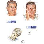 Cluster Headache and Chronic Paroxysmal Hernicrania