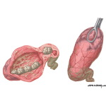 Acute Calculous Cholecystitis
