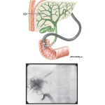 Imaging Studies of the Liver: Cholangiography