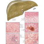 Extrahepatic Biliary Obstruction II - Stages