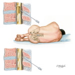 Lumbar Puncture and Epidural Anesthesia
