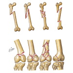 Fractures of the Shaft and Distal Femur
