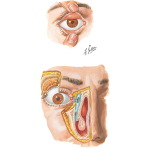 Orbit: Eyelids and Lacrimal Apparatus