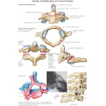 Fracture and Dislocation of Cervical Vertebrae